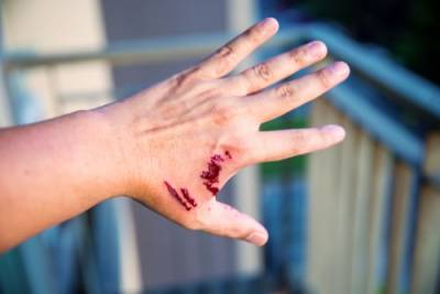 Naperville dog bite injury attorneys